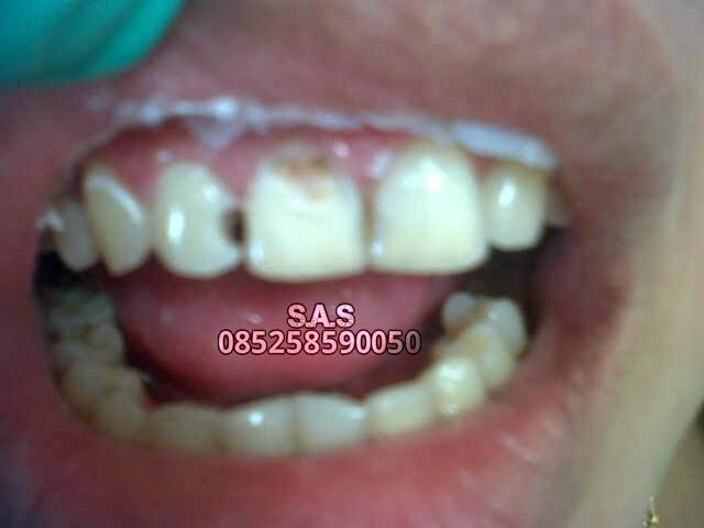 Cara S.A.S Mengembalikan (Perbaikan) Keutuhan Gigi Depan Hitam dan ... 8eff748402