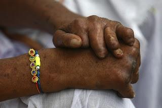 leprosy-removed-india