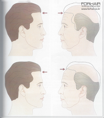 hairline design factors, good hairline design, korea hair transplant, forhair korea