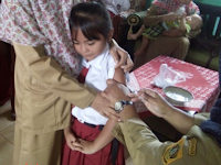 Gejala difteri dan cara pencegahan