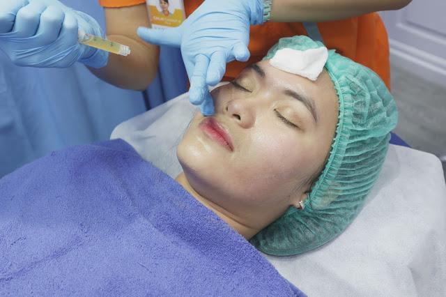PRP treatment NMW skincare Jogja