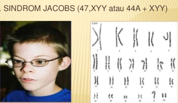 Hasil gambar untuk sindrom jacob pandani