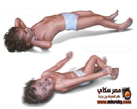 التشنجات العصبية عند الأطفال وكيفية الوقاية منها والعلاج