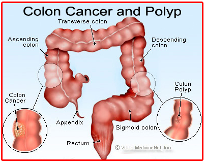 Treatment & Cure of Colon Polyps through Spirituality | Healing Diseases