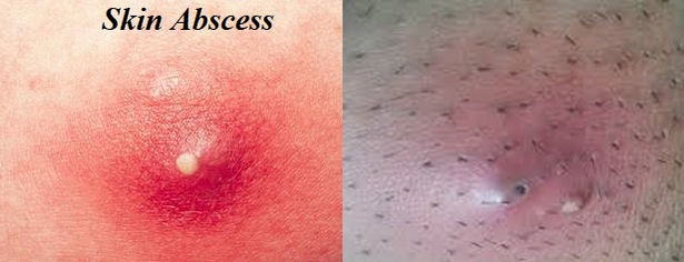 Skin abscess