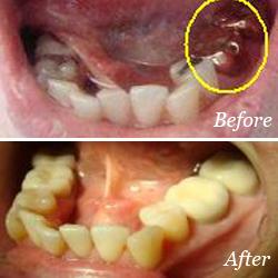 Dental-crowns-by-Dr. Kotecha