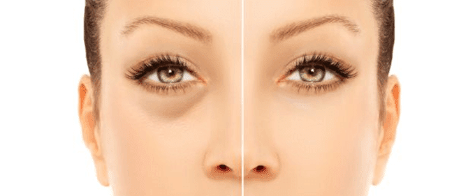 olheiras-tratamento (1)