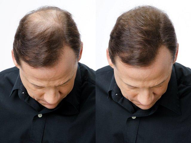Cara Membuat Ramuan Alami Penumbuh Rambut