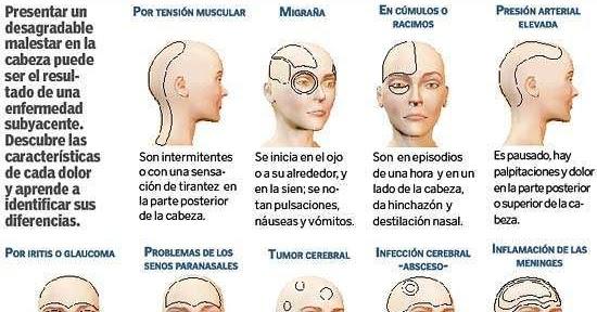 Palpitaciones en la cabeza y dolor