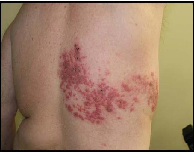 Study Medical Photos Introduction To Herpes Zoster