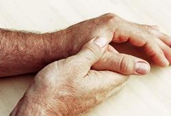 5 Pengobatan Rumahan untuk Menurunkan Asam Urat