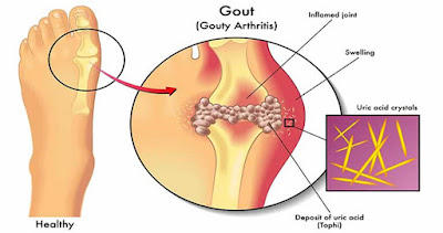High Uric Acid Linked to Both Gout and Diabetes