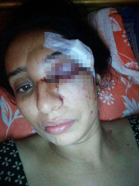 This Woman Was Beaten by Her Husband. What Her Family Did Next Will Shock You!