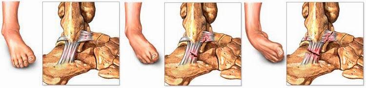 tratamiento maternity esguince de rodilla porción 3