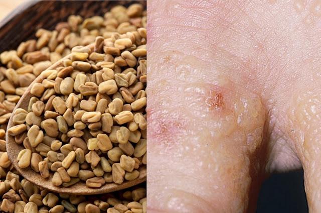 طريقة علاج الإكزيما المزمنة بالأعشاب