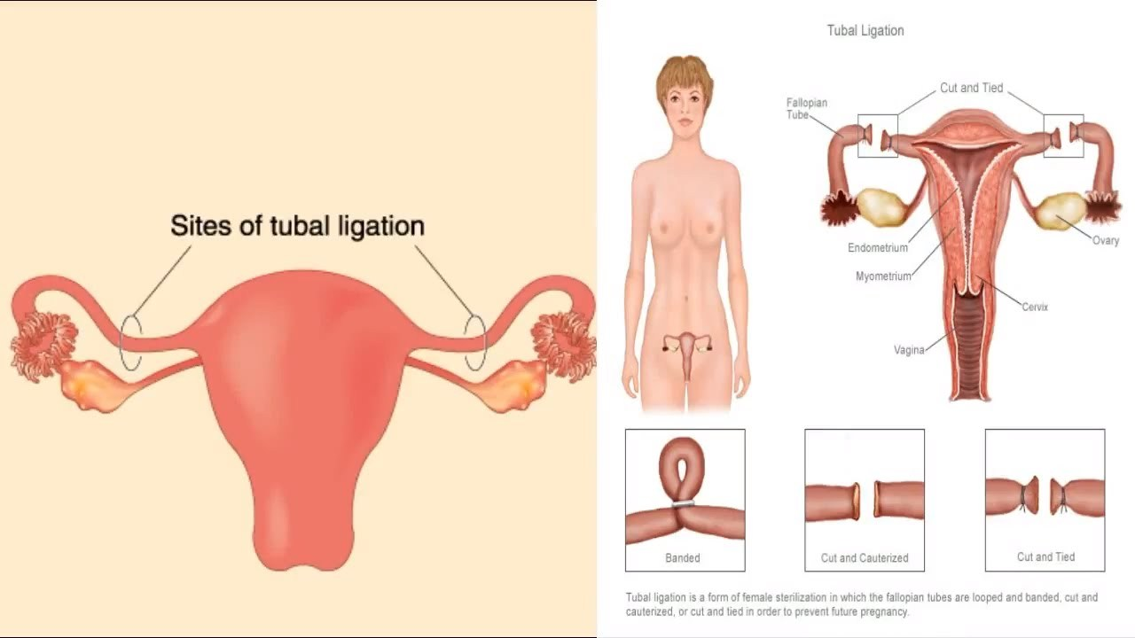 what kind of anesthesia is used for tubal ligation