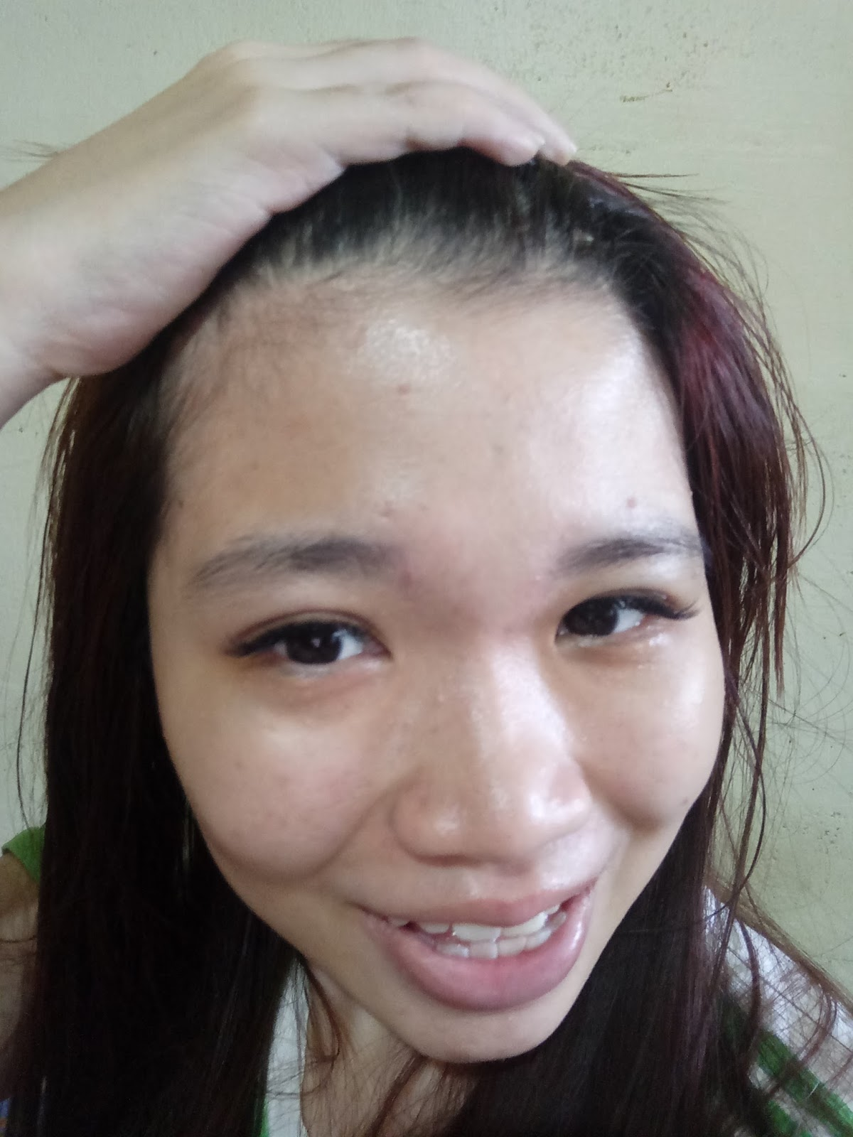 Image result for chemical peeling sgcomplainqueen