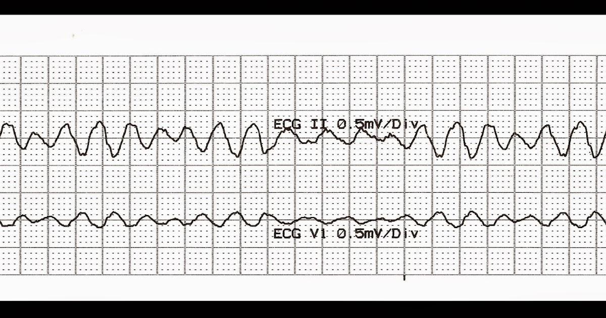 Float Nurse: Practice EKG Strips 336