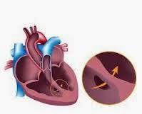 Obat Jantung Bocor Bayi