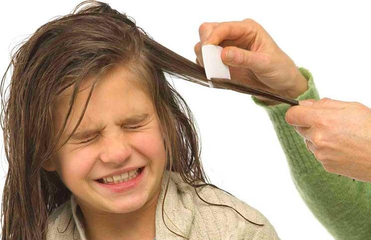 5 Cara Menghilangkan Kutu Rambut dan Telurnya