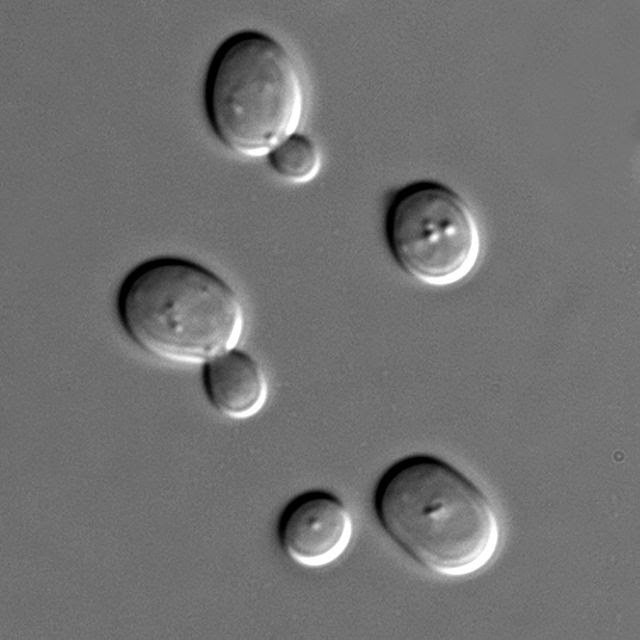 Saccharomyces cerevisiae cells shown with DIC microscopy