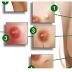 Fique atenta aos 12 sinais do Câncer de Mama