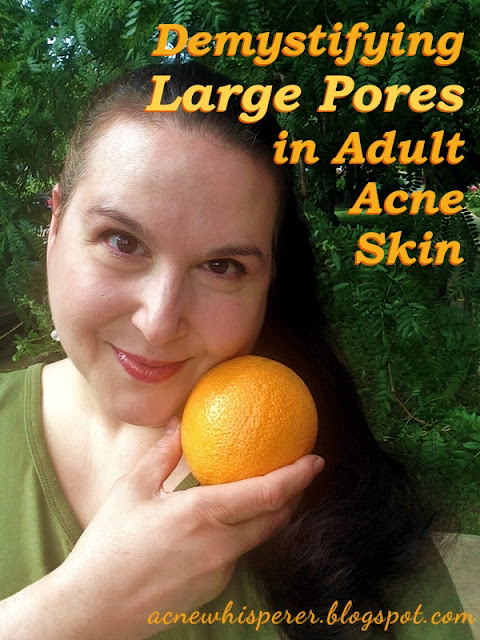 Demystifying large pores in adult acne skin