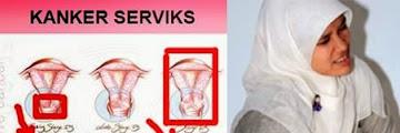 INILAH 6 Ciri-Ciri Anda Mengidap Kanker Serviks! Ciri no.6 banyak yg tidak sadar!!