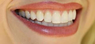 Need To Know Information About Dental Insurance