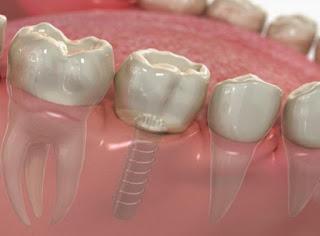Mất răng cấm vĩnh viễn có nguy hiểm không?