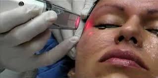 Efek samping dan keuntungan dari laser wajah jerawat