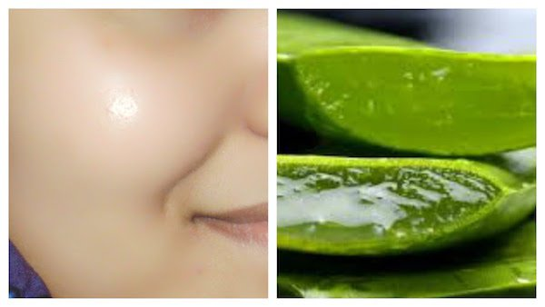 Radiant And Flawless Skin Using Aloe Vera Gel