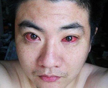 Chinese Man Suffering From Eye Cancer Contracted From Too Much Gadget Use