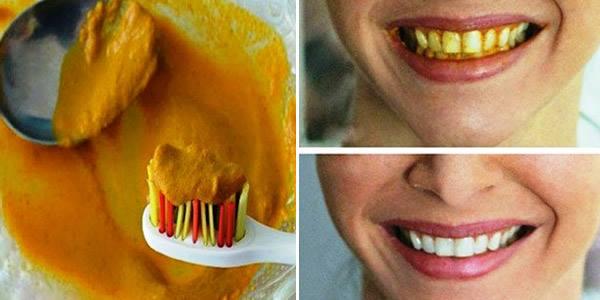 Dentistii nu va vor spune asta niciodata: iata o metoda naturala prin care sa evitati pierderea dintilor!