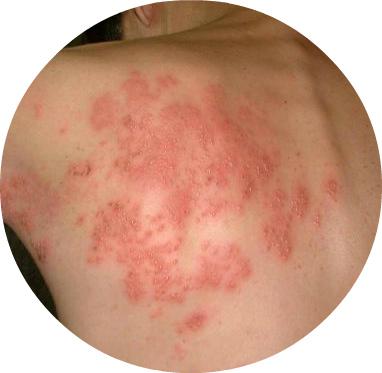 Cara Menghilangkan Bekas Luka Herpes