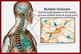 nutati in tratarea sclerozei multiple molecula Sephin1