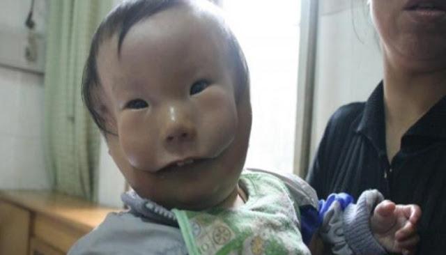 Bayi Perempuan Ini Terlahir dengan Wajah Seperti Bertopeng.