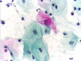 Papanicolau-citologia-anormal