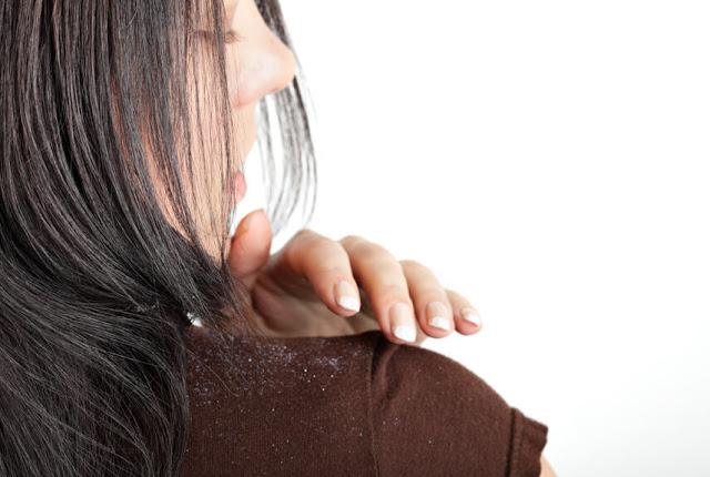 كيفية التخلص من قشرة الشعر نهائيا