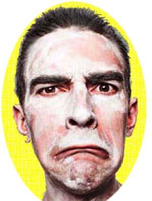 vitiligo leucoderma disease