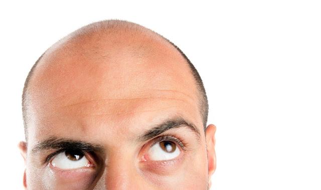 تاريخ زراعة الشعر
