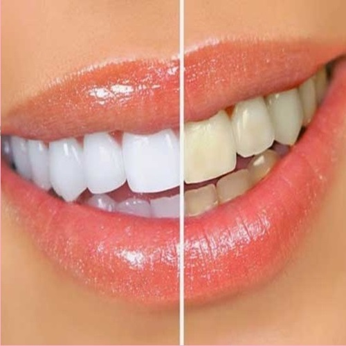 Aprenda A Clarear Os Seus Dentes Com Folha De Aluminio E Bicarbonato