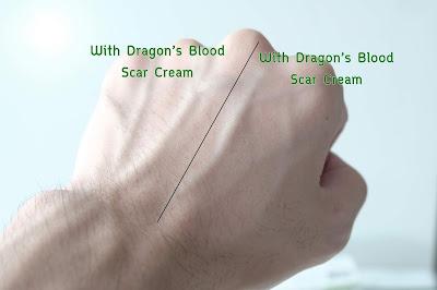 เทียบระหว่างฝั่งที่ทา Dragon's Blood Scar Cream กับฝั่งที่ไม่ได้ทา