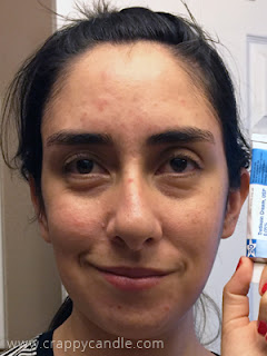 2 Months on Tretinoin Cream :: The Acne Experiment