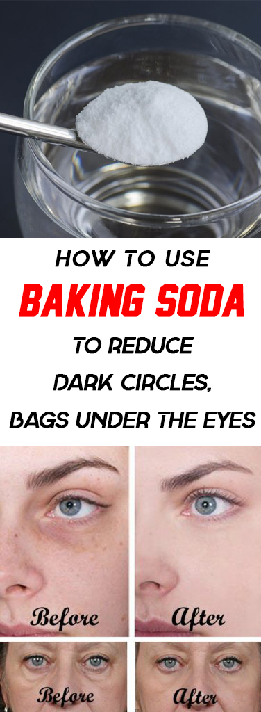 How To Use Baking Soda To Reduce Dark Circles And Bags ...
