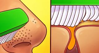 Μαύρα Στίγματα ΤΕΛΟΣ! Ο πιο εύκολος τρόπος να αφαιρέσετε τα μαύρα στίγματα από τη μύτη σας.