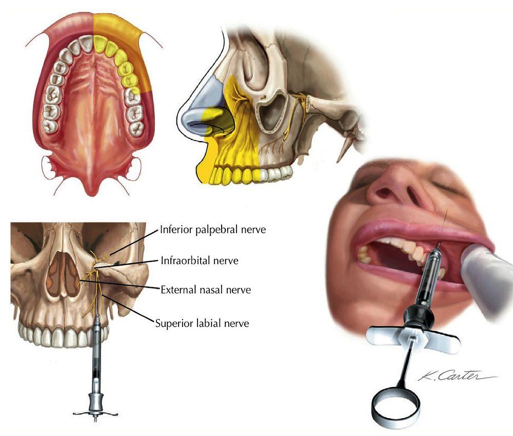 Infraorbital Anesthesia