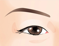 Eye Plastic Surgery in Korea, Get Rid of Sleepy Eyes