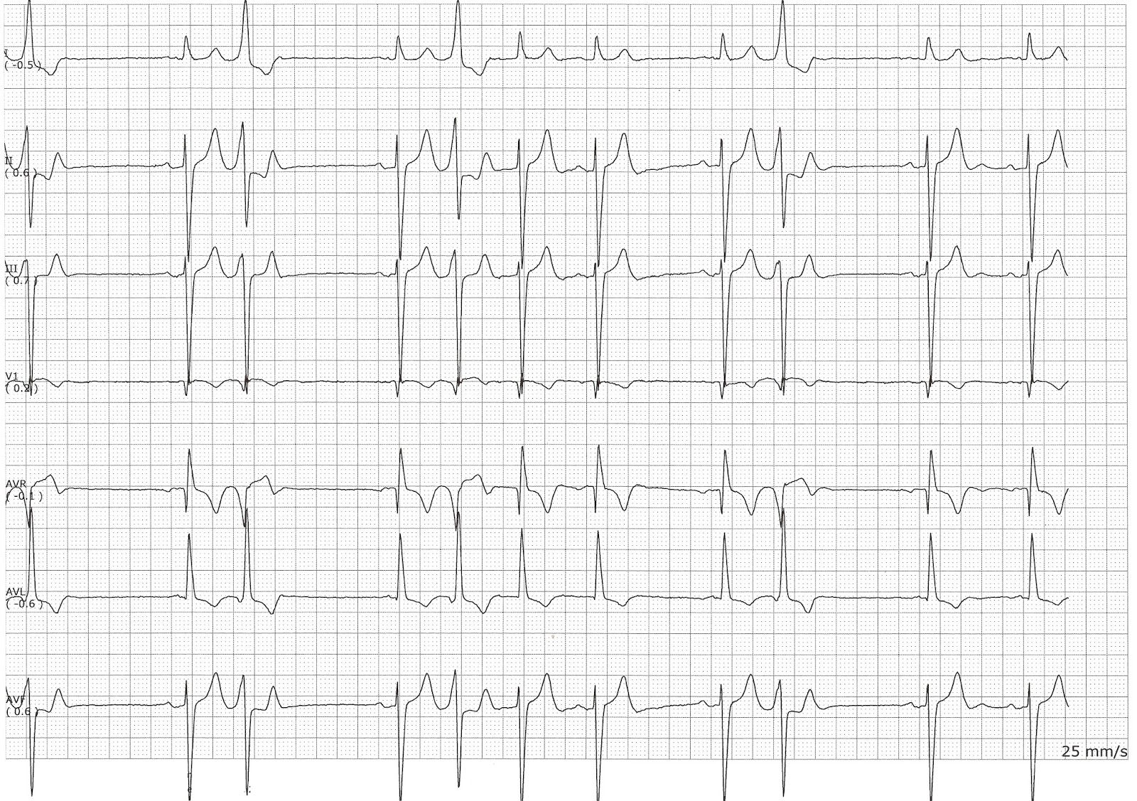 Telemetry Technician Course: Practice EKG Quiz