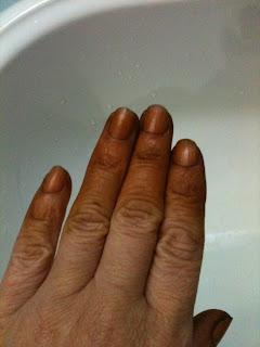 Prevenção e tratamento com permanganato de potássio